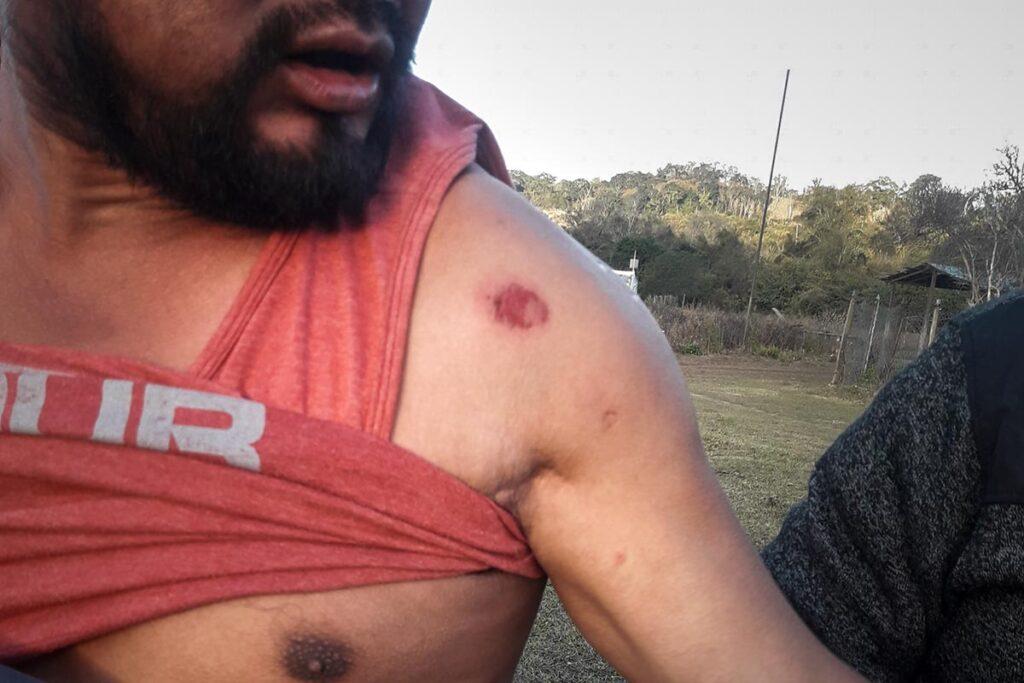 La policía de Salta reprimió con balas de goma
